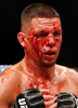 02-Nate-Diaz-Bloodied.png