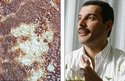 07-Freddie-Mercury-pork-chop-side-by-side